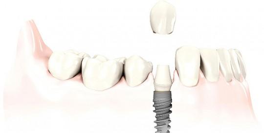 dientes_1hora